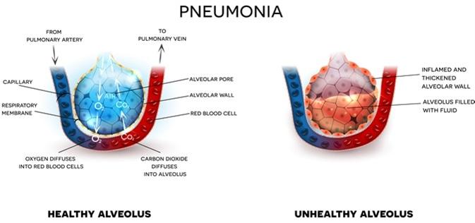 Es Pulmonía el Recorrer Contagioso?