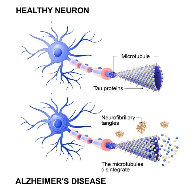 Untangling tau in the brain - Alzheimers Research UK Blog