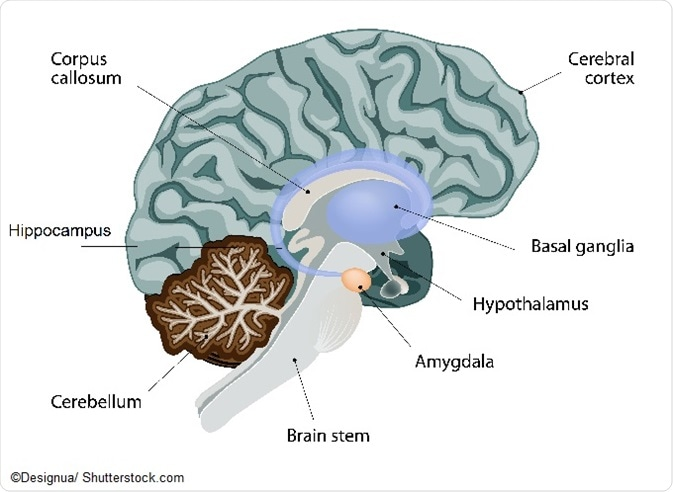 Neural mechanisms of social anxiety disorder till date consistent hyperactivity of the amygdala and the insula deep brain structures are the known triggers of sad research on humans and other ccuart Gallery