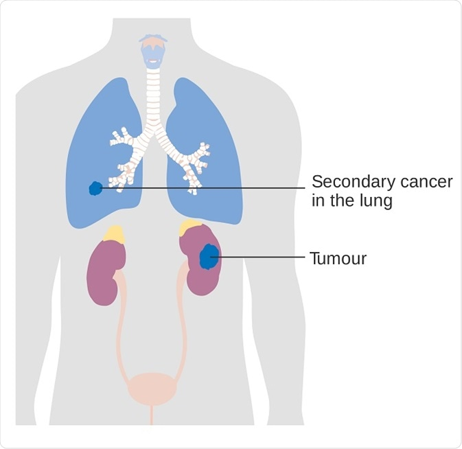 Secondary Lung Cancer