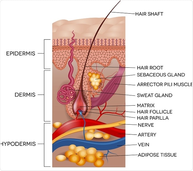 hair follicle tumors