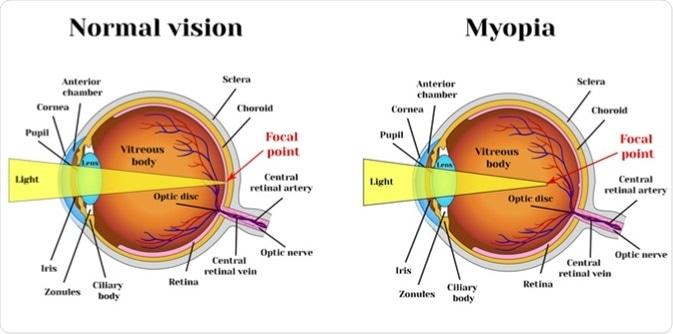 Nyitott myopia gén
