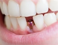 Dental Implant Risks