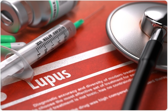 lupus diagnostico