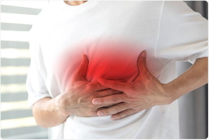 Pericarditis Causes