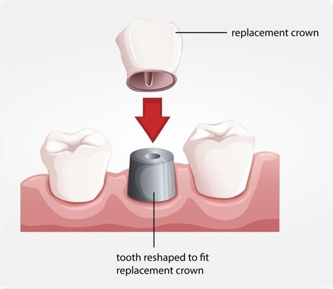 Procedure For Dental Crowns