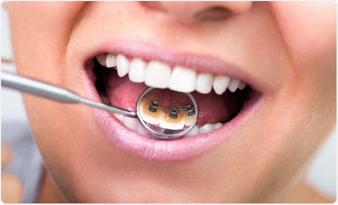 lingual braces on dental mirror image credit lucky business shutterstock
