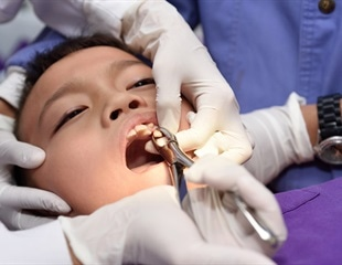 Types Of Dental Extraction