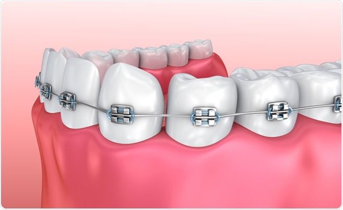 teeth with braces isolated on white medically accurate 3d illustration image credit alex