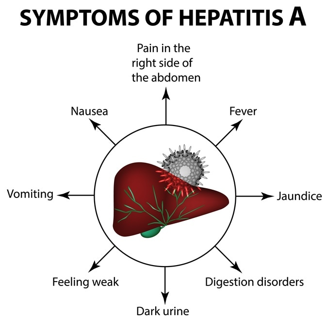 Hepatitis A  >> Hepatitis A Outbreak Among Population Of San Diego