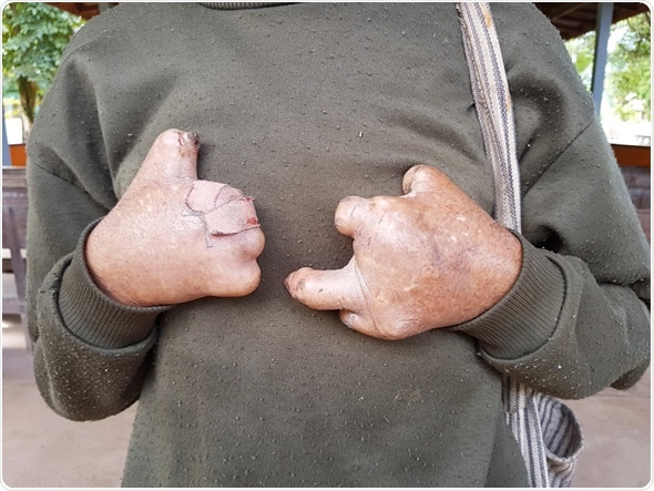 Closeup hands of asian old man suffering from leprosy, Thailand - Image Credit: Bidarat Tiemjai / Shutterstock