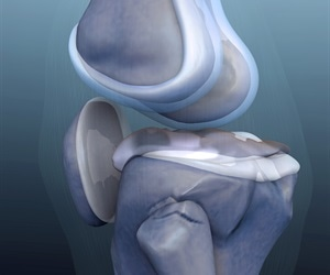 Individuals with synovitis may have greater risk for cartilage damage, shows study