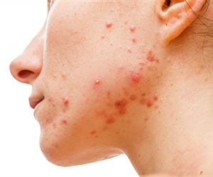 Genetics study offers hope for new acne treatment