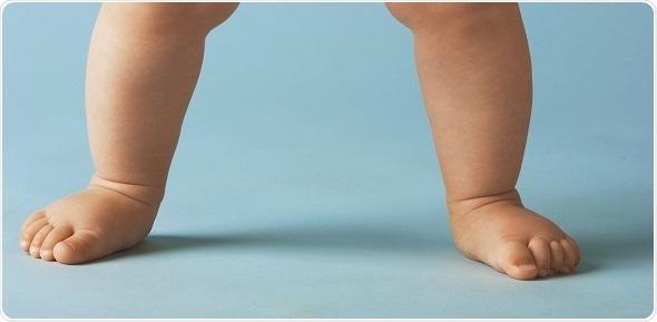 Flatfoot In Children