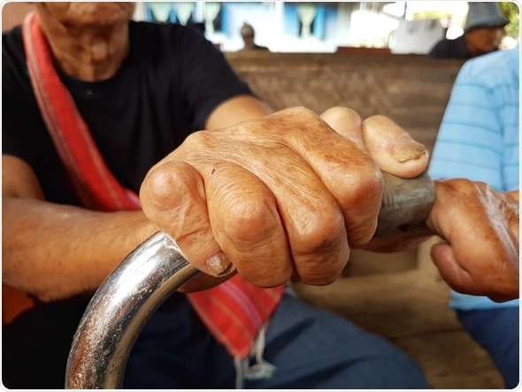 Closeup hands of asian old man suffering from leprosy, Thailand - Image Credit: Tidarat Tiemjai / Shutterstock
