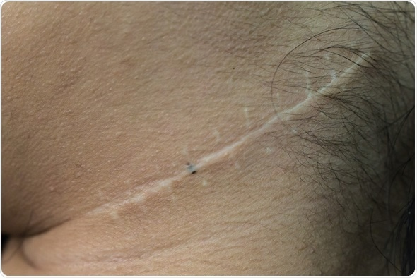 Scar from operation on neck - Image Credit: Ratchaya Nonthanaphat / Shutterstock