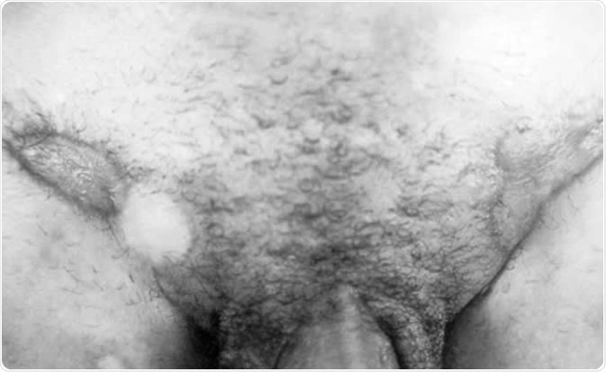 A photograph of granuloma inguinale identified through differential diagnostic technique. The differential diagnosis proved to be that of granuloma inguinale and not Syphilis. Granuloma inguinale, caused by Calymmatobacterium granulomatis, results in surface destruction and granuloma formation of the skin and subcutaneous tissue. Image Credit: CDC/Susan Lindsley