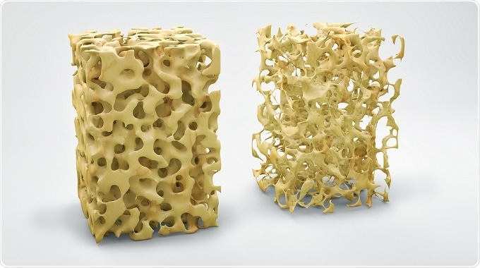 Osteoporosis and Body Image