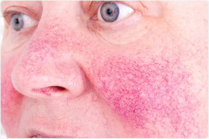 Rosacea characterized by facial redness, small and superficial dilated blood vessels. Image Credit: Lipowski Milan / Shutterstock