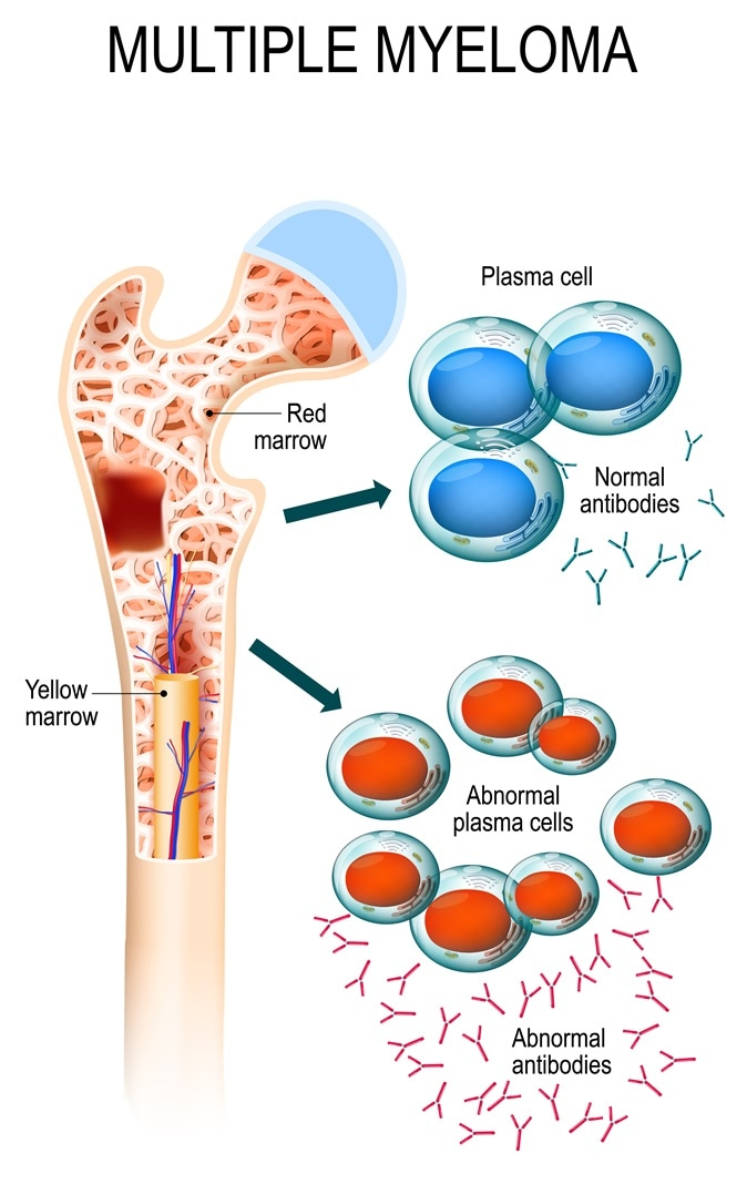 Multiple myeloma is a cancer of the bone marrow. healthy plasma cells in the bone marrow mutate and multiply uncontrollably. malignant plasma cells produce a paraprotein. Image Credit: Designua / Shutterstock