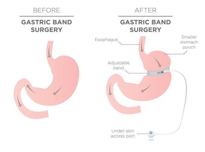 Gastric Band for Weight Loss. Image Credit: bearsky23 / Shutterstock