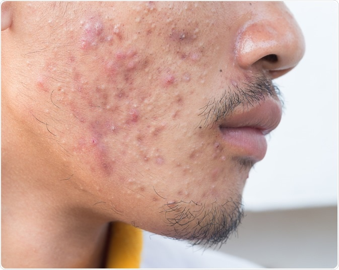 Man with problematic skin and scars from acne. Image Credit: frank60 / Shutterstock