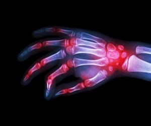 Promising methods for early detection and treatment of rheumatoid arthritis