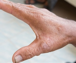 Seeking solutions to treat scleroderma