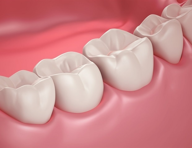 RUDN University dentists identify reason for early deterioration of dental implants – News-Medical.Net