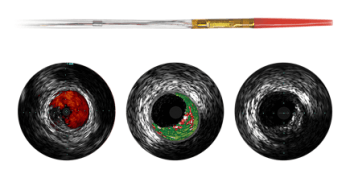 Eagle Eye Platinum Digital IVUS Catheter from Philips Healthcare