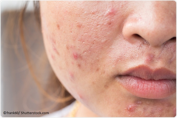 How To Get Rid Of A Red Pimple Naturally