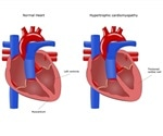 Genetic Mutation Associated with Hypertrophic Cardiomyopathy