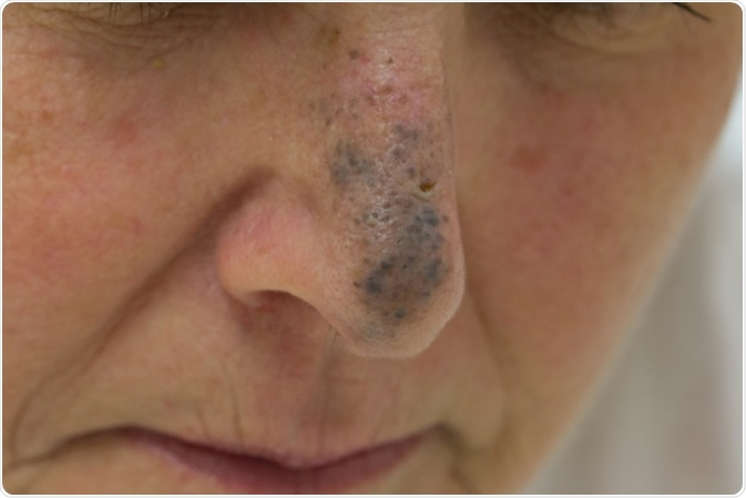 Blue Nevus on the Nose of a Female - Image Credit: Anthony Ricci / Shutterstock
