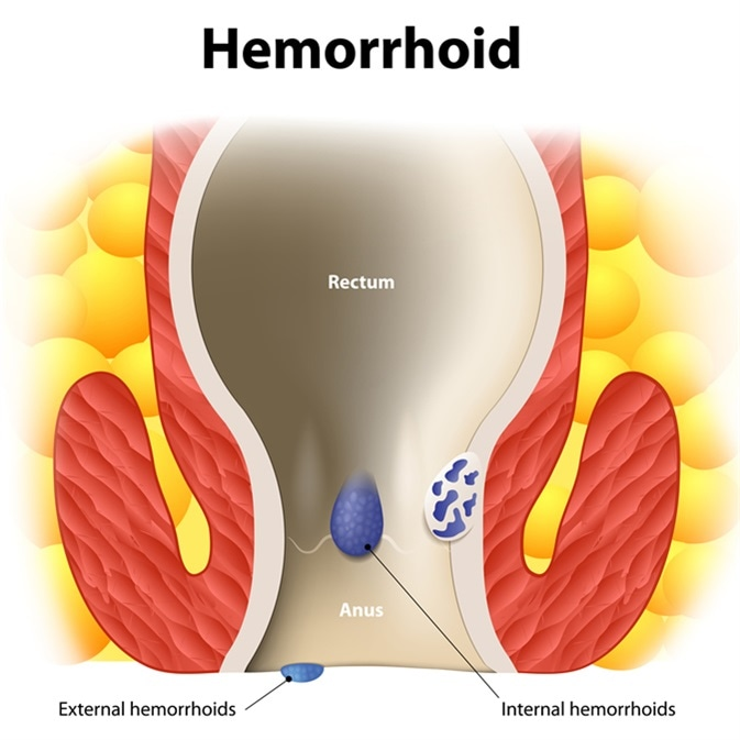 Diagram the anal anatomy. internal and external hemorrhoids. Human anatomy - Imnage Credit: Designua / Shutterstock