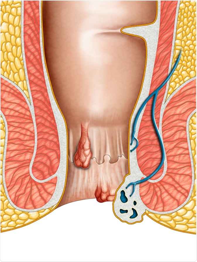 Anatomical drawing showing internal and external hemorrhoids. Digital illustration. Image Credit: Andrea Danti / Shutterstock