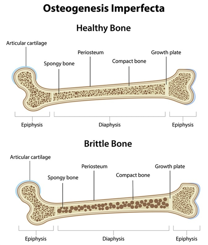 What are some signs of brittle bones? - Quora  |Osteogenesis Imperfecta Symptoms