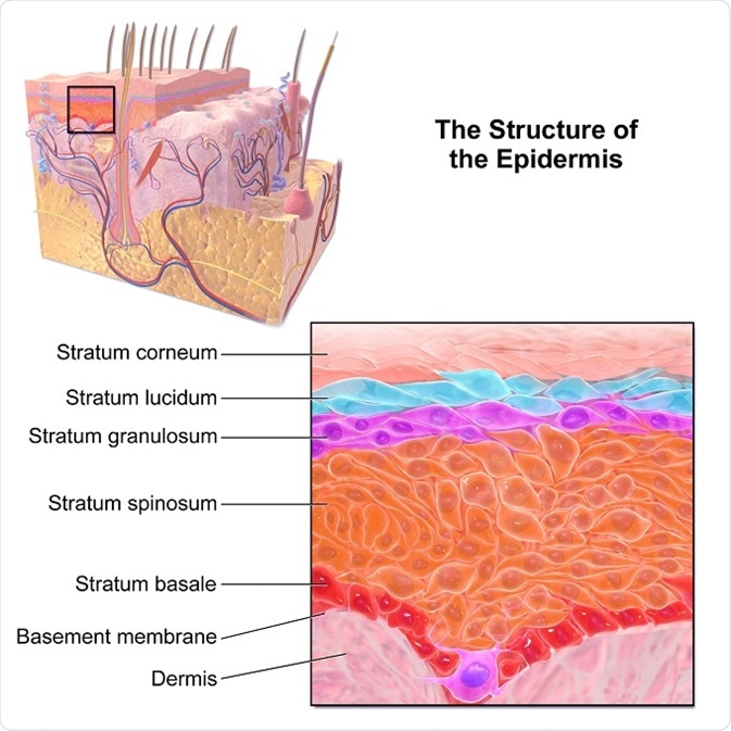 What Is Inflammatory Linear Epidermal Nevus?