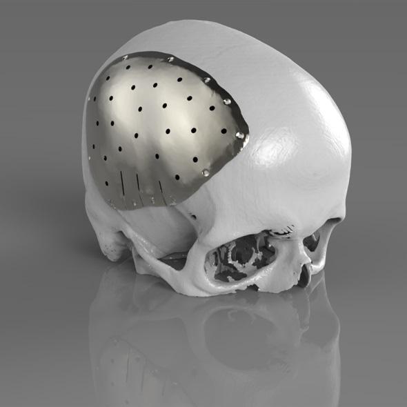 Surgeons To Showcase Renishaw Implant Technology During
