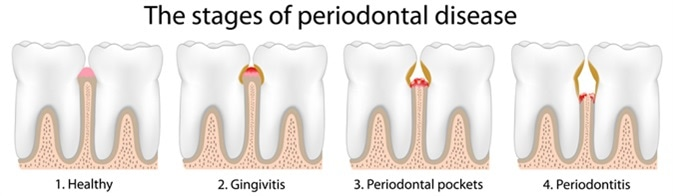 Periodontal Disease Stages - Image Credit: Alila Medical Media / Shutterstock