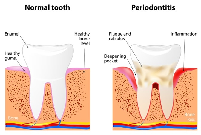 Periodontitis is a inflammatory diseases affecting the periodontium, the tissues that surround and support the teeth. Image Credit: Designua / Shutterstock