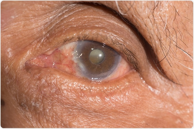Close up of cataract - Image Credit: ARZTSAMUI / Shutterstock