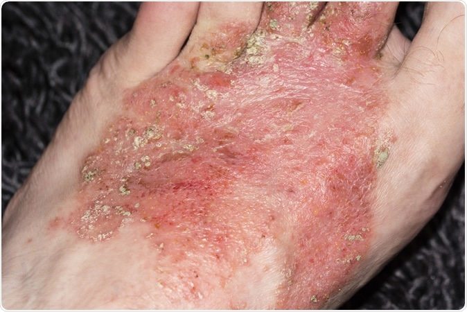 Eczema on the foot - Image Credit: Lapis2380 / Shutterstock