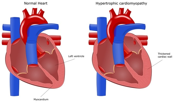 Heart disease: hypertrophic cardiomyopathy. Image Credit: ellepigrafica / Shutterstock