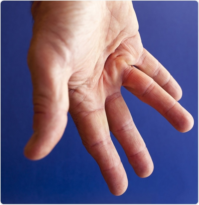 Hand of an man with Dupuytren contracture disease. Image Credit: Fineart1 / Shutterstock