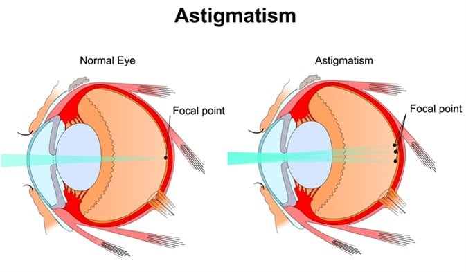 Astigmatism. Eye vision disorder. Diagram of the eye. Image Credit: Slave SPB / Shutterstock