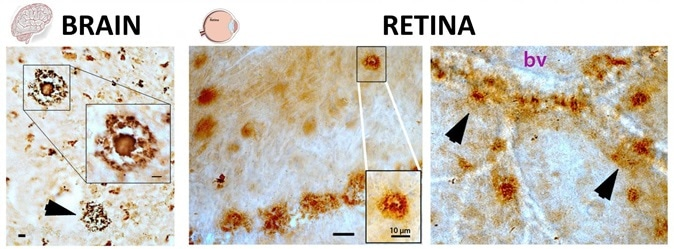 Pathological hallmarks of Alzheimer's disease, beta-amyloid plaques (brown spots), as seen both in brain and retinal tissues from deceased patients, as described in the Aug. 17 edition of Journal of Clinical Investigation Insight (Koronyo et al. 2017). The structures of these plaques in the brain and retina are very similar (classical and vascular-associated deposits; bv = blood vessel), suggesting that the retina faithfully represent the brain disease. Image Credit: Image adapted from JCI Insight. 2017; 2(16):e93621. doi:10.1172/jci.insight.93621