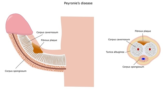 Peyronie's disease, with formation of a fibrous plaque and penis deviation. Image Credit: Ellepigrafica / Shutterstock