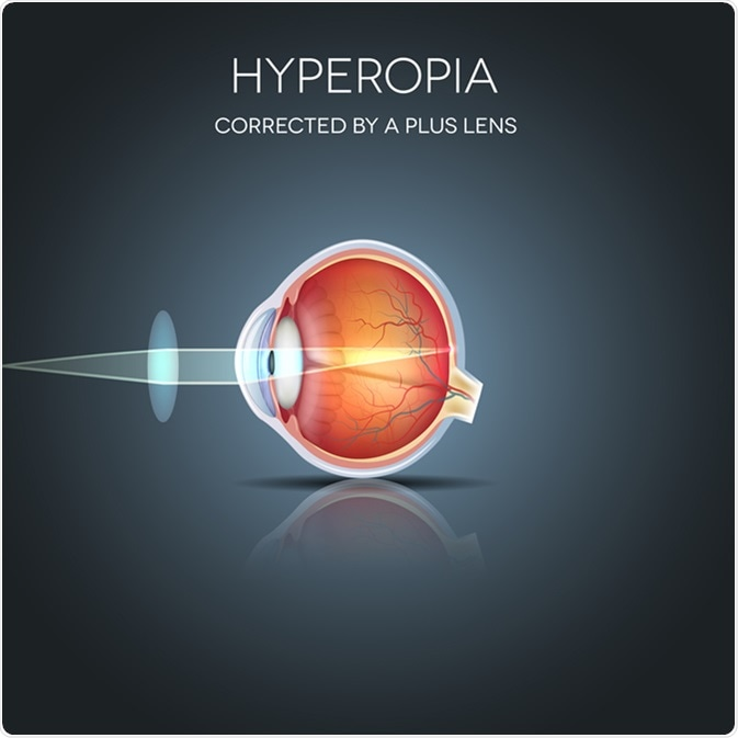 Hyperopia corrected by a plus lens. Hyperopia is being long sighted (far sighted). Near object seems blurry. Image Credit: Tefi / Shutterstock