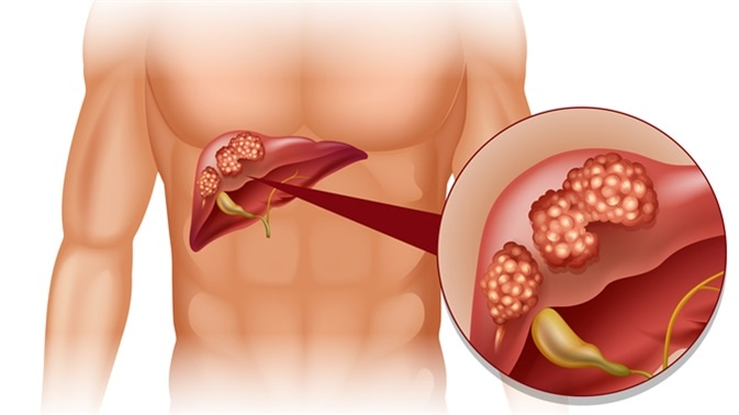 Liver cancer in human illustration. Image Credit: BlueRingMedia / Shutterstock