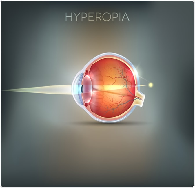 Hyperopia, vision disorder being long sighted. Near object seems blurry. Image Credit: Tefi / Shutterstock